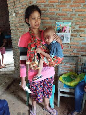 Anak Pengidap Kanker Mata Ganas Ini Membutuhkan Uluran Tangan Para Dermawan