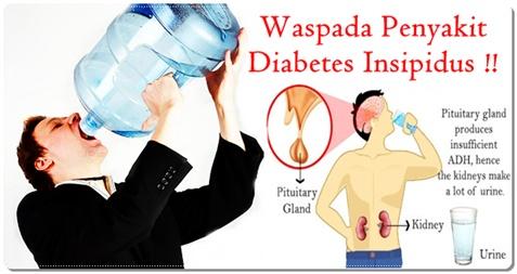 Cara Pengobatan Dan Pencegahan Diabetes Insipidus Secara Alami