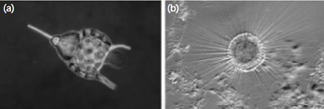 Ciri-Ciri Protozoa dan Klasifikasi Protozoa