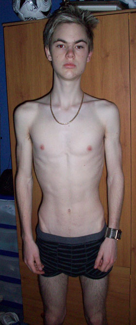 Gay Anorexic 32