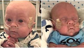 Πρόωρο μωράκι κέρδισε τη μάχη για τη ζωή όταν οι πιθανότητες να επιβιώσει ήταν 2%
