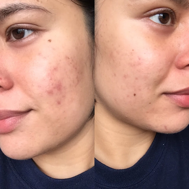 Retin A Before and After Photo - During Tretinoin Purge