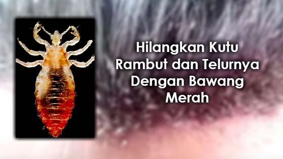 Hilangkan Kutu Rambut dan Telurnya Dengan Bawang Merah