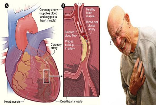 Hal-hal Faktor Pemicu Cepat Resiko Penyakit Jantung