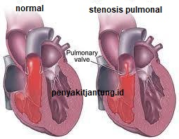 gambar stenosis katup pulmonal