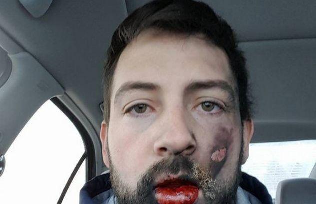 ΣΟΚΑΡΟΥΝ οι ΕΙΚΟΝΕΣ! Αν δεν ΑΝΤΕΧΕΤΕ μην το ΔΕΙΤΕ! Ανατινάχτηκε το ηλεκτρονικό τσιγάρο στο στόμα του – Εγκαύματα και 7 σπασμένα δόντια! (ΦΩΤΟ)