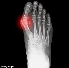 Tanda- tanda Gout