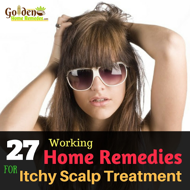 Home Remedies For Itchy Scalp, How To Get Rid Of Itchy Scalp, Itchy Scalp Treatment, Itchy Scalp Remedy, Treatment For Itchy Scalp, Dry Scalp, How To Cure Itchy Scalp, How To Treat Itchy Scalp, Scalp Care Home Remedies, itchy scalp home remedies