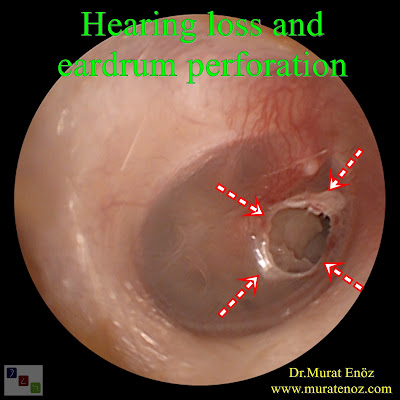 Hearing loss and eardrum perforation