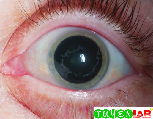 Emergency Atlas Of Herpes Zoster Ophthalmicus Free Medical Atlas