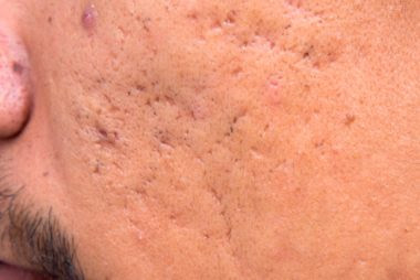 Acne Scar Treatments: Discover the Best Way to Remove Your Acne Scars in 5 Simple Steps