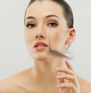 Cara Menghilangkan Noda Flek Hitam di wajah Secara Tradisional dengan Bahan-bahan Alami