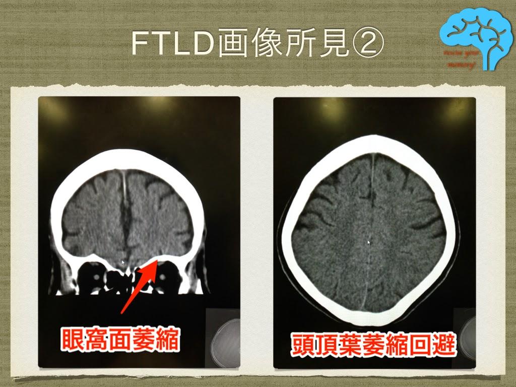 前頭側頭葉変性症の画像②