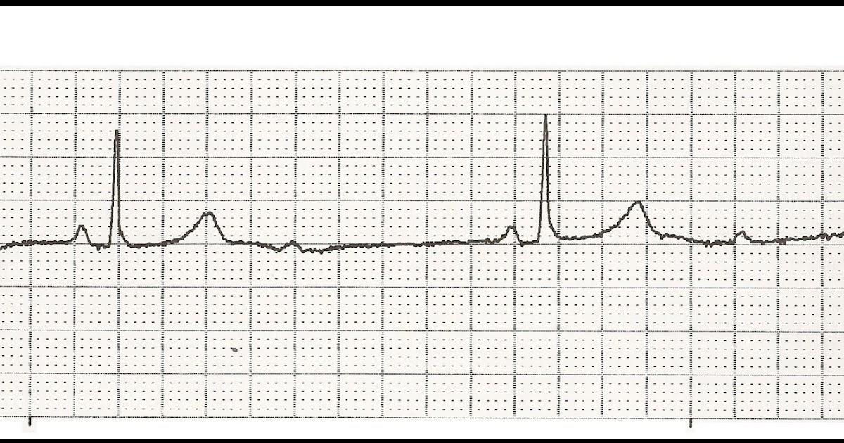 Float Nurse: EKG Test