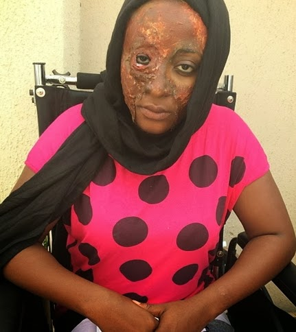 ini edo acid attack victim