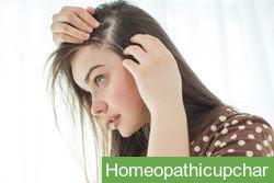 बालों के लिए होम्योपैथिक दवा !