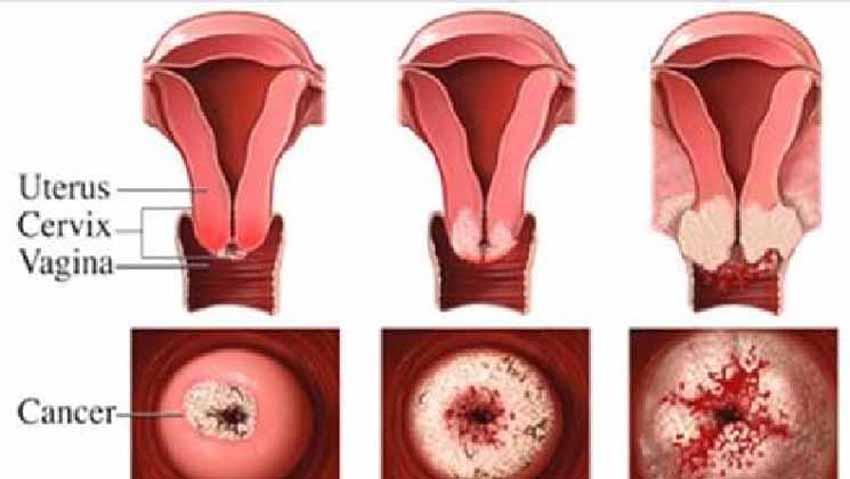 BEGINILAH Cara Menghancurkan Kanker Serviks  BEGINILAH Cara Menghancurkan Kanker Serviks (Mulut Rahim) Secara Alami dan Cepat,Tolong di Share !!