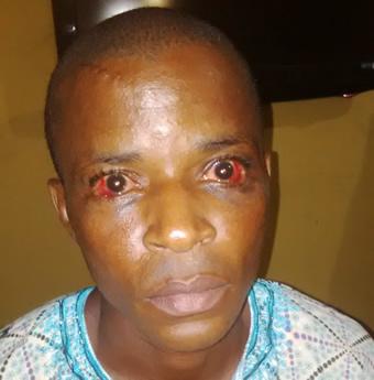 police beat man to coma akwa ibom