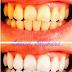 طريقة إزالة الجير وإصفرار الأسنان بطريقة سهلة وغير مكلفة دون الذهاب إلى طبيب الأسنان