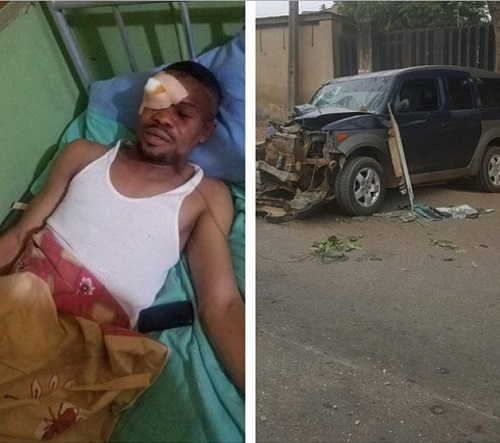 Nollywood Actor Almost Lost An Eye In Fatal Car Crash (Photos)