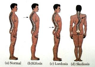 Macam-Macam Gangguan dan Kelainan Pada Tulang (Sistem Gerak) Manusia