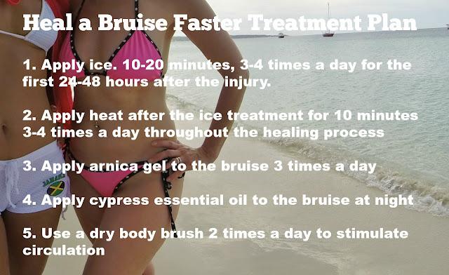 heal a bruise faster treatment plan