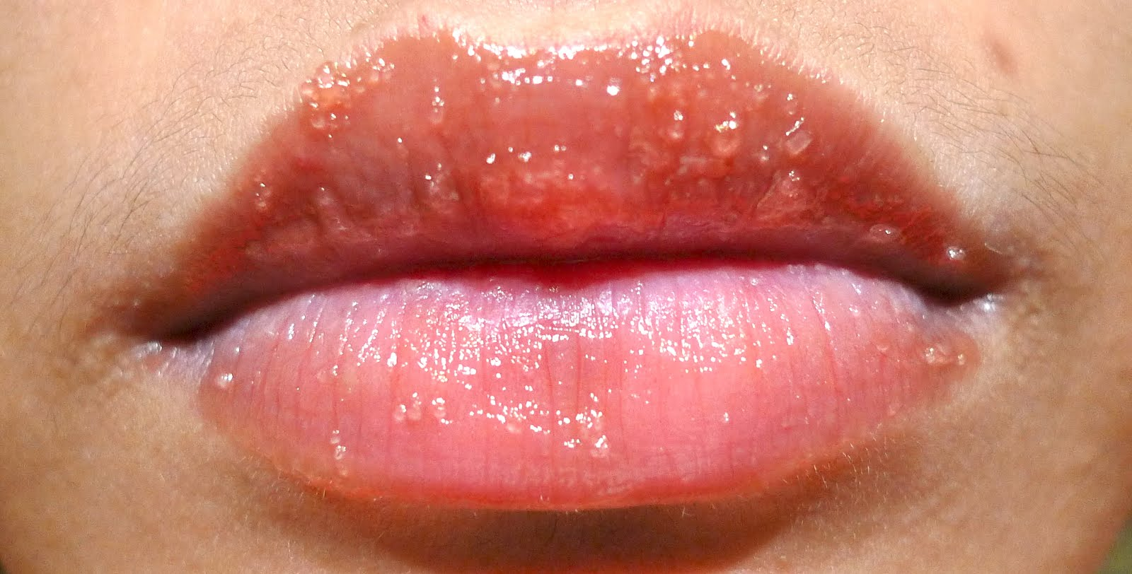 Bumps+On+Lips+Allergic+Reaction Apply liberally on lips and let it ...