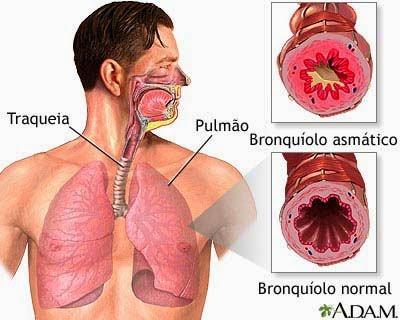 obat herbal asma, obat asma,obat asma,obat asma tradisional,obat asma herbal,obat asma anak,obat asma untuk anak,obat asma inhaler,obat asma generik,obat asma untuk ibu hamil,obat asma akut,obat asma semprot