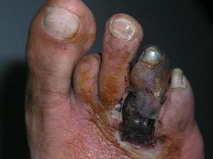 diabetes pada kaki