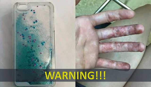 sports shoes af6d7 6b58a WARNING: Waterfall Glittery Cases Now Being Recalled On Stores ...