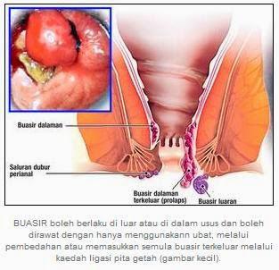 tubuh lemas, pandangan menyusut, serta kelaur darah waktu kencing atau BAB