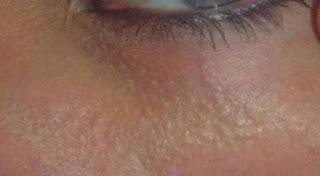 هذا هو سرّ النقاط البيضاء التي تظهر أسفل عينيك!