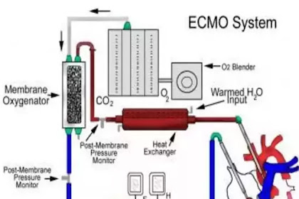 What is ECMO? How does it work?