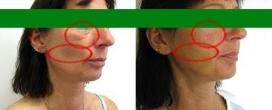 chirurgia estetica viso napoli
