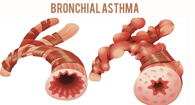 Prepare for Medical Exams : Bronchial Asthma