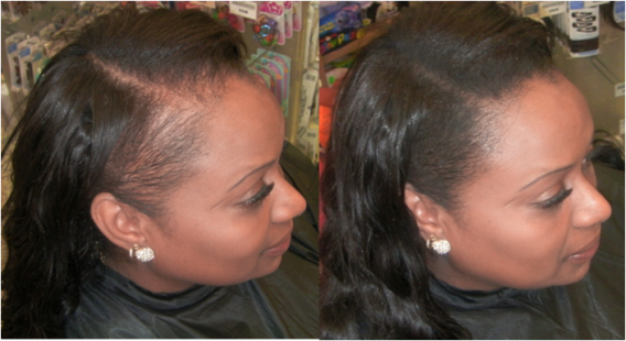 How To Make Your Hairline Amp Edges Fuller In Minutes