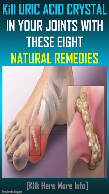 Kill #URIC #ACID #CRYSTAL IN YOUR JOINTS WITH THESE EIGHT #NATURAL #REMEDIES