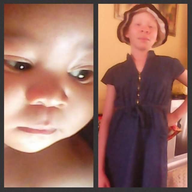 Photos: Kidnapped 13-year-old albino girl and her 15-month-old nephew found murdered in South Africa