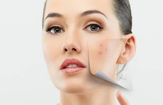 Penting!!! Cara Jitu Sehat Alami Menghilangkan Bekas Jerawat di Wajah Anda