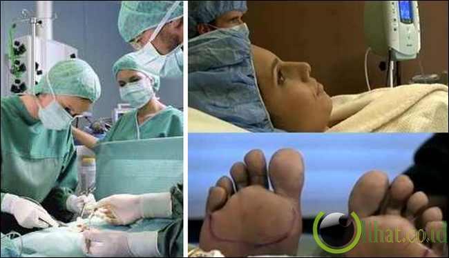 Operasi Telapak Kaki Untuk Menyusuaikan Kontur Sepatu