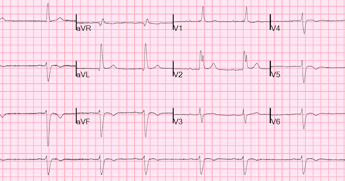 Dr. Smith's ECG Blog: ...