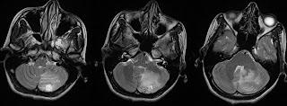 Dr Balaji Anvekar's Neuroradiology Cases: 01/06/16 - 01/07/16
