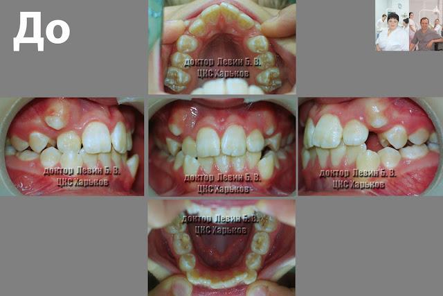 пять фото прикуса  в разных проекциях до лечения