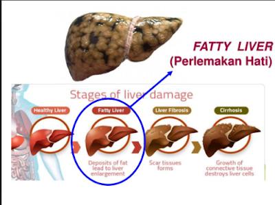 Laporan Pendahuluan Fatty Liver Nanda Nic Noc Terbaru