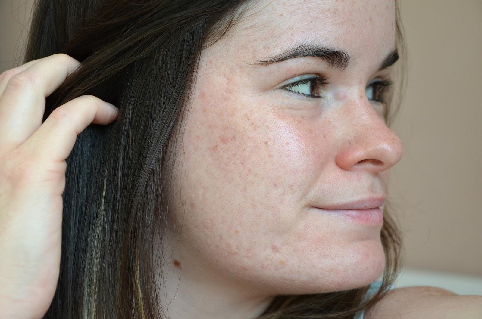 bilan du cinquième mois de traitement contre l'acné joue droite