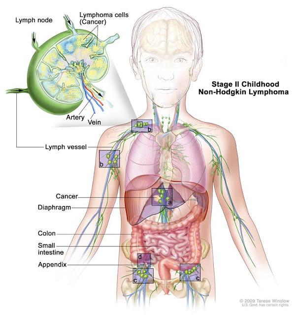 Limfoma Non Hodgkin adalah sejenis kanker yang menyerang sel darah putih