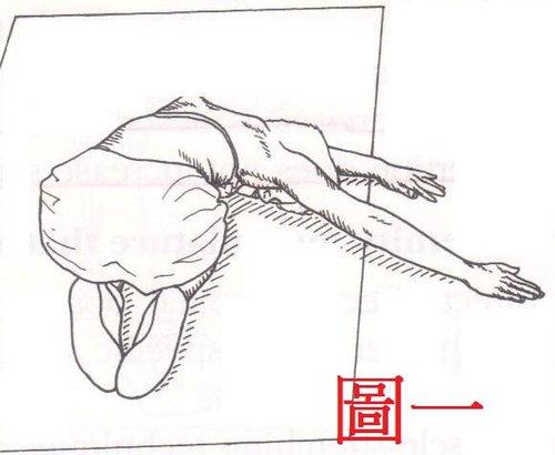 脊椎側彎整骨, 脊椎側彎背架, 脊椎側彎矯正, 姿勢體態矯正, 骨盆歪斜, 脊椎側彎復健, 脊椎側彎矯正運動
