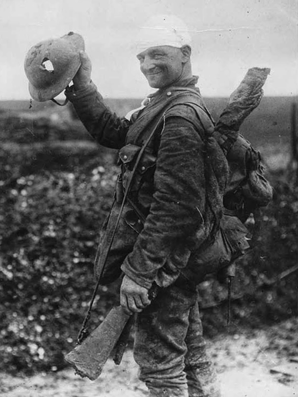 This soldier, on the way to hospital after being bandaged at Field Dressing Station, shows the helmet which saved his life.