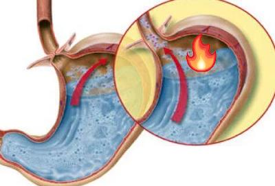 reflü mide yanması