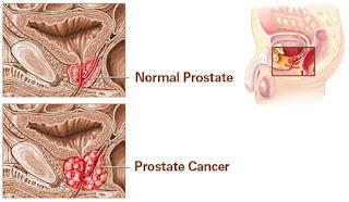 Sekresi Hormon Dan Kanker Prostat
